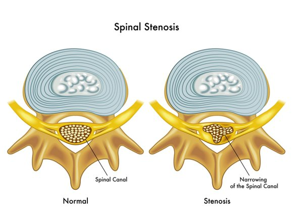 Spinal Stenosis in Los Angeles