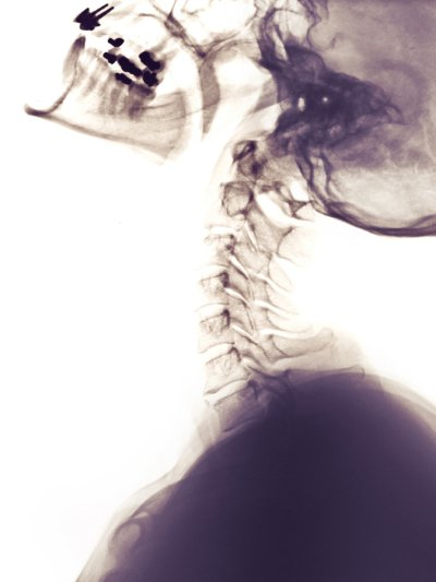 Cervical Spine Surgery Los Angeles