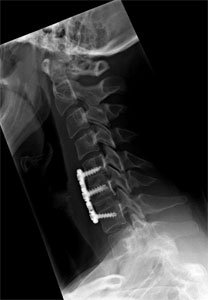 Anterior Cervical Discectomy and Fusion in Los ANgeles