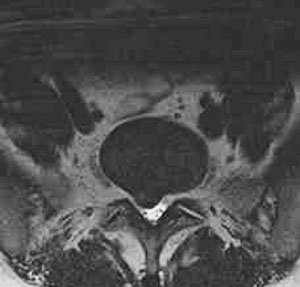 MRI image through L5-S1demonstrating right paracentral disc herniation